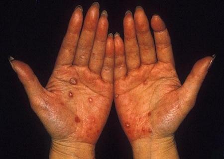 Tác hại của bệnh giang mai