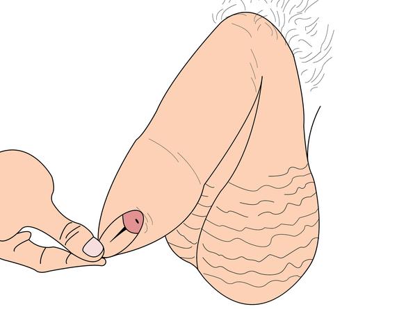 Bao quy đầu chưa lộn là như thế nào? Phải làm gì khi bao quy đầu không lộn?